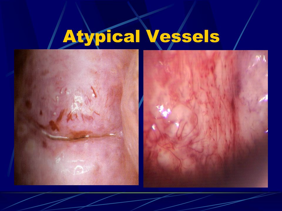 Atypical Vessels