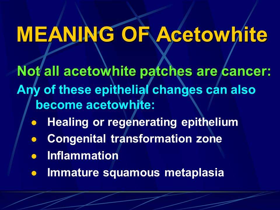 MEANING OF Acetowhite Not all acetowhite patches are cancer: