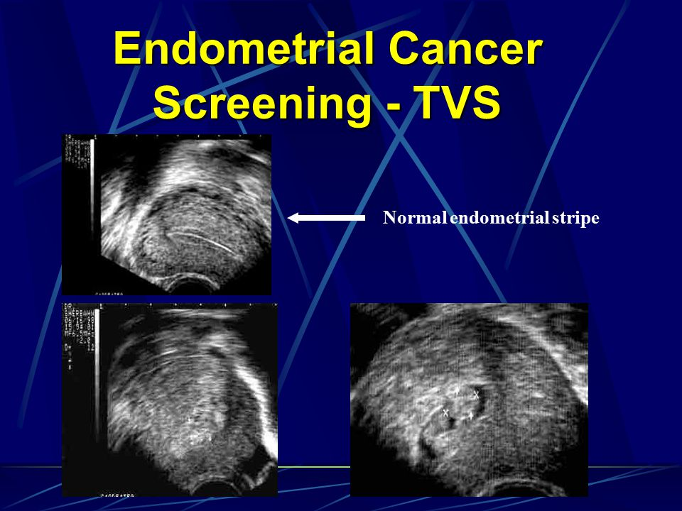 Endometrial Cancer Screening - TVS