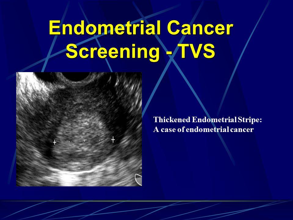 Endometrial Cancer Screening - TVS