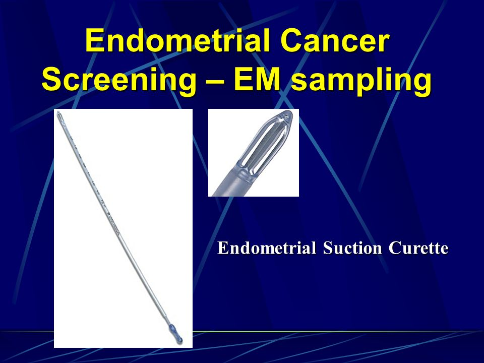 Endometrial Cancer Screening – EM sampling