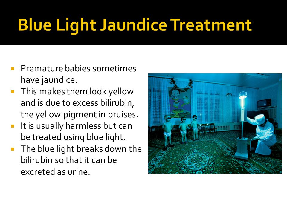 Blue Light Jaundice Treatment