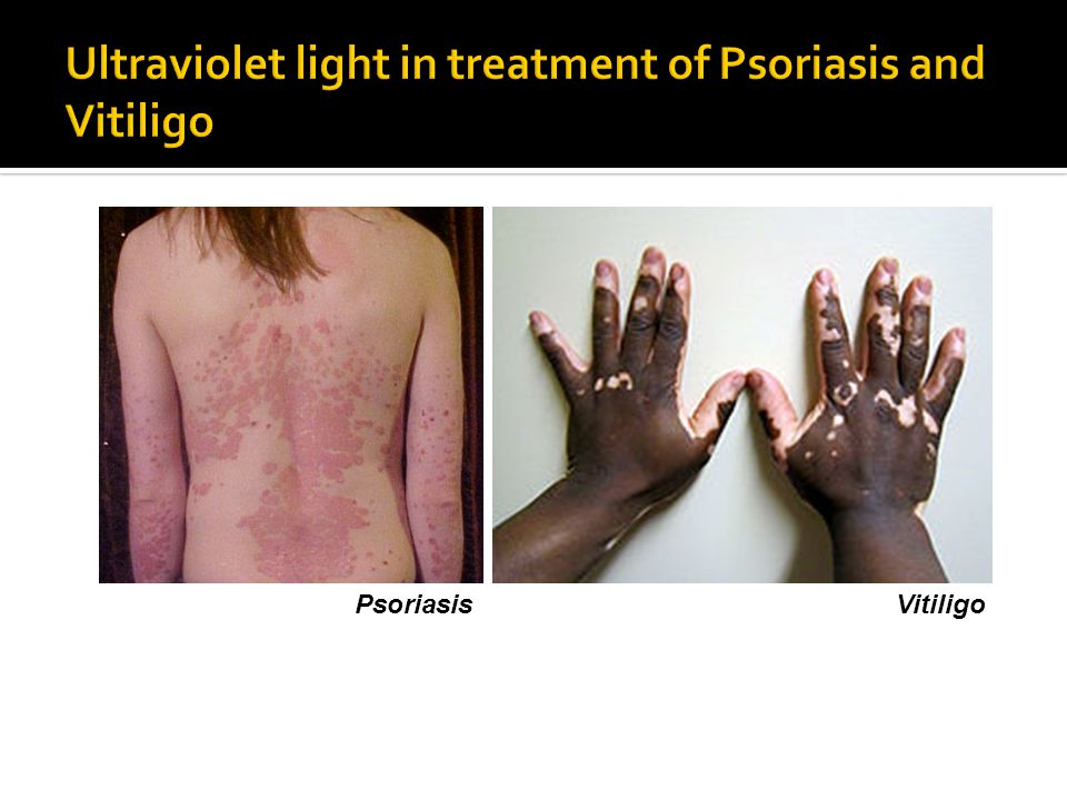 Ultraviolet light in treatment of Psoriasis and Vitiligo