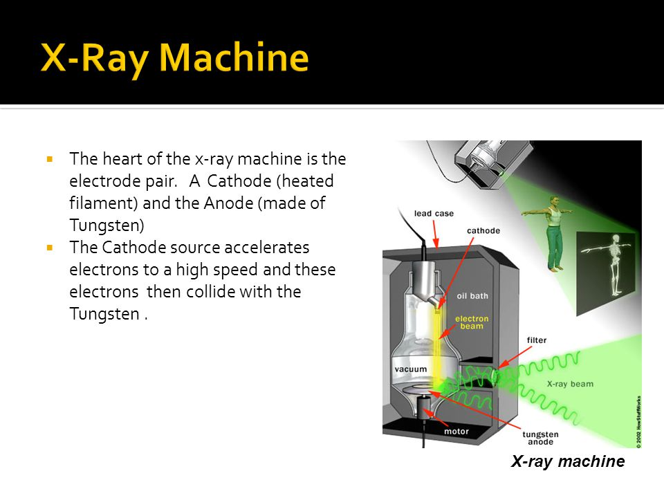 X-Ray Machine The heart of the x-ray machine is the electrode pair. A Cathode (heated filament) and the Anode (made of Tungsten)