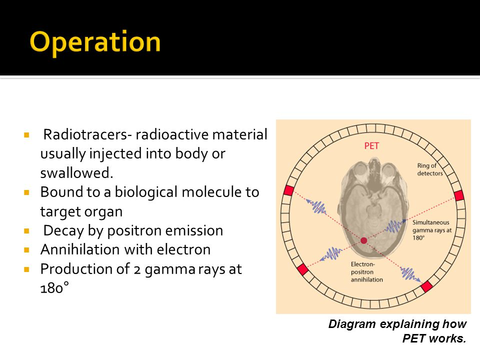 Operation Radiotracers- radioactive material usually injected into body or swallowed. Bound to a biological molecule to target organ.