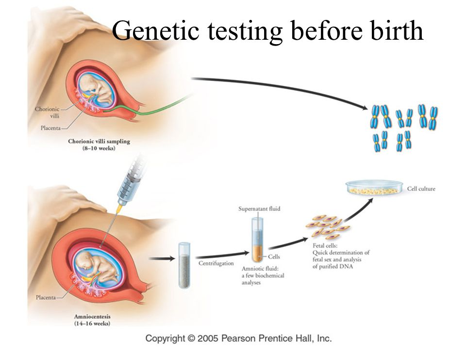 Genetic testing before birth