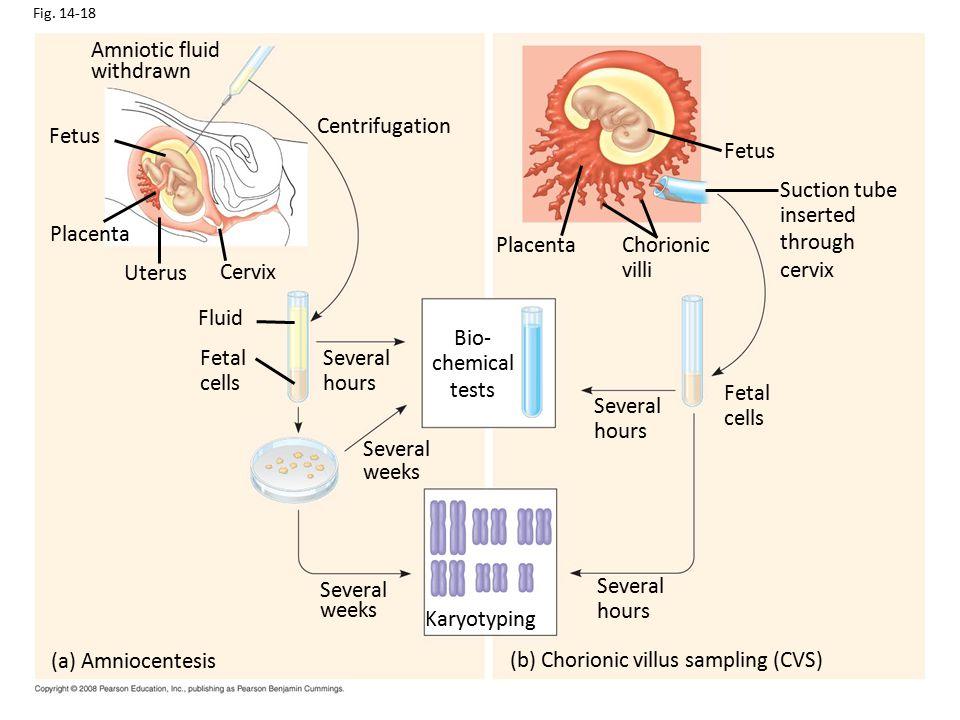 (b) Chorionic villus sampling (CVS)