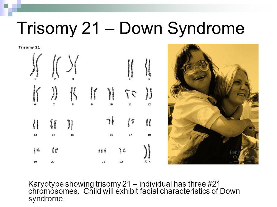 Trisomy 21 – Down Syndrome