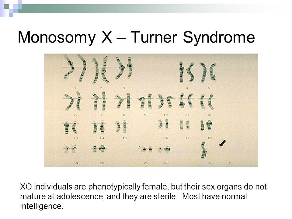 Monosomy X – Turner Syndrome