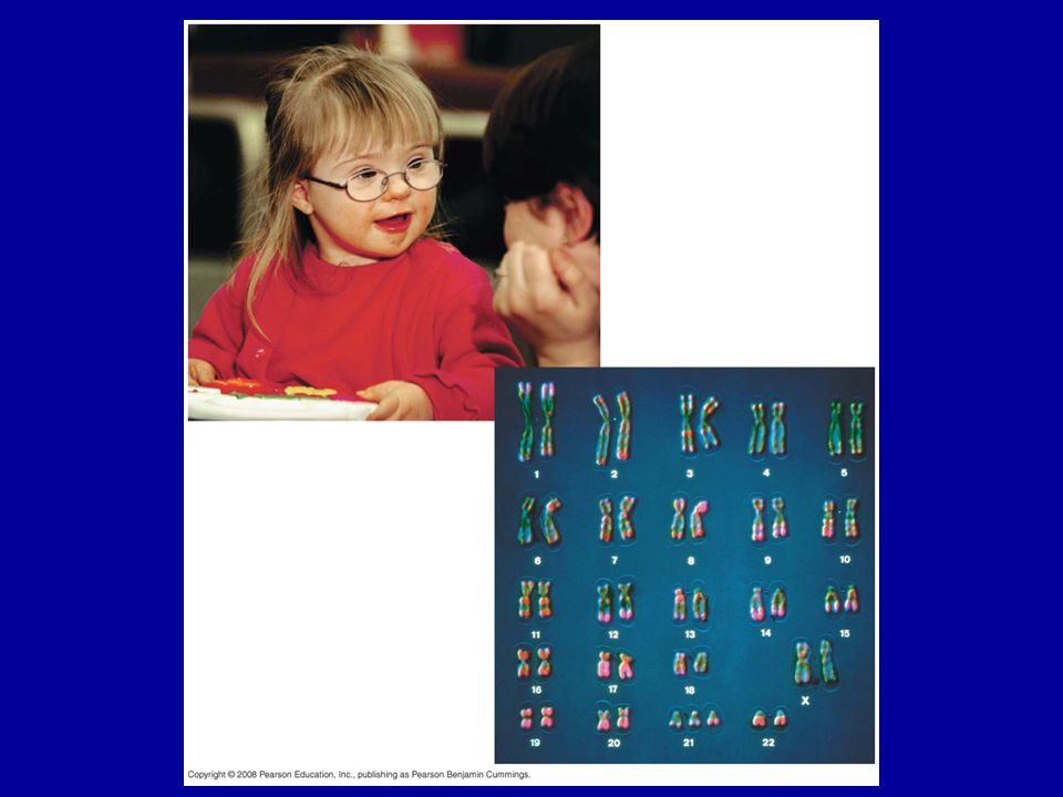 Figure 15.16 Down syndrome