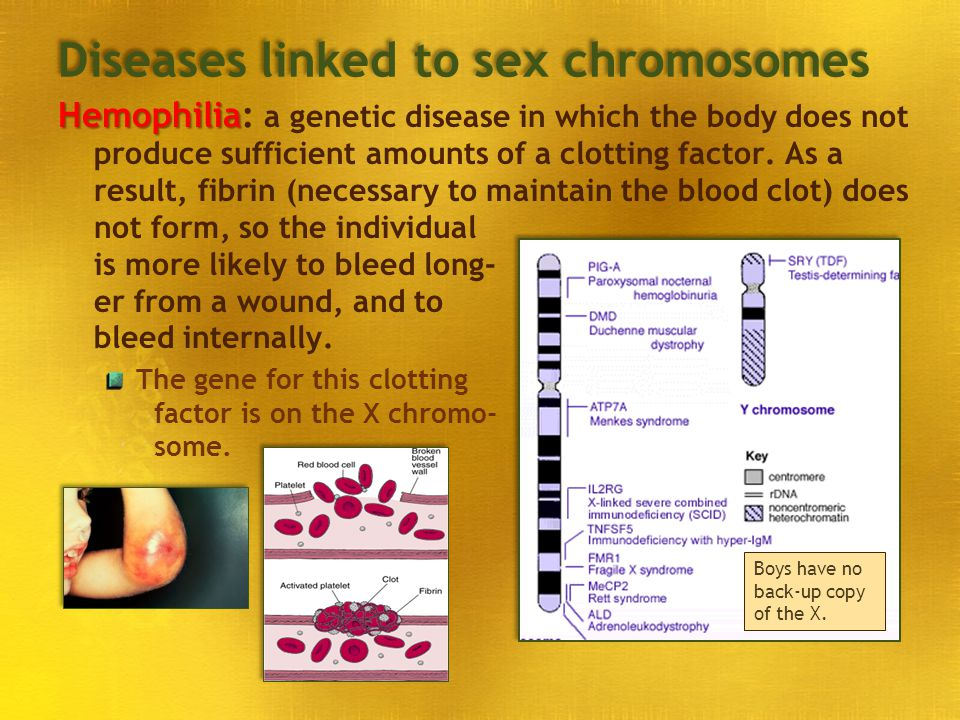 Diseases linked to sex chromosomes
