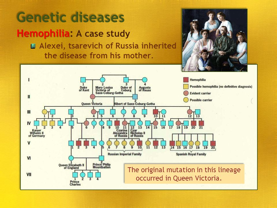 Genetic diseases Hemophilia: A case study