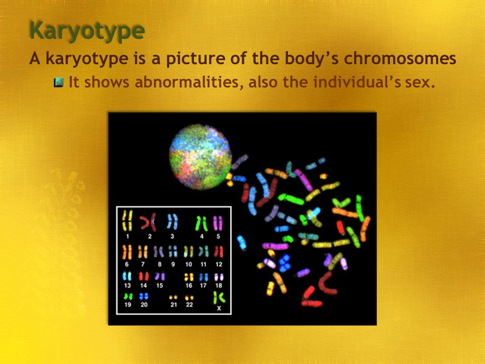 Karyotype A karyotype is a picture of the body's chromosomes