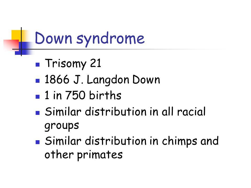 Down syndrome Trisomy 21 1866 J. Langdon Down 1 in 750 births