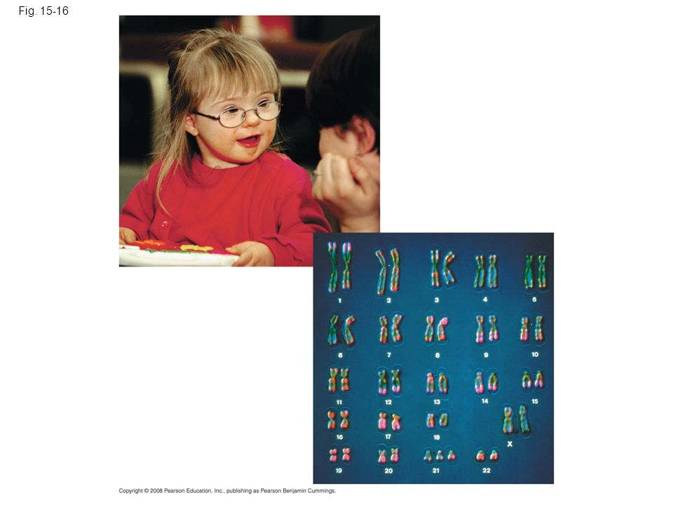 Fig. 15-16 Figure 15.16 Down syndrome