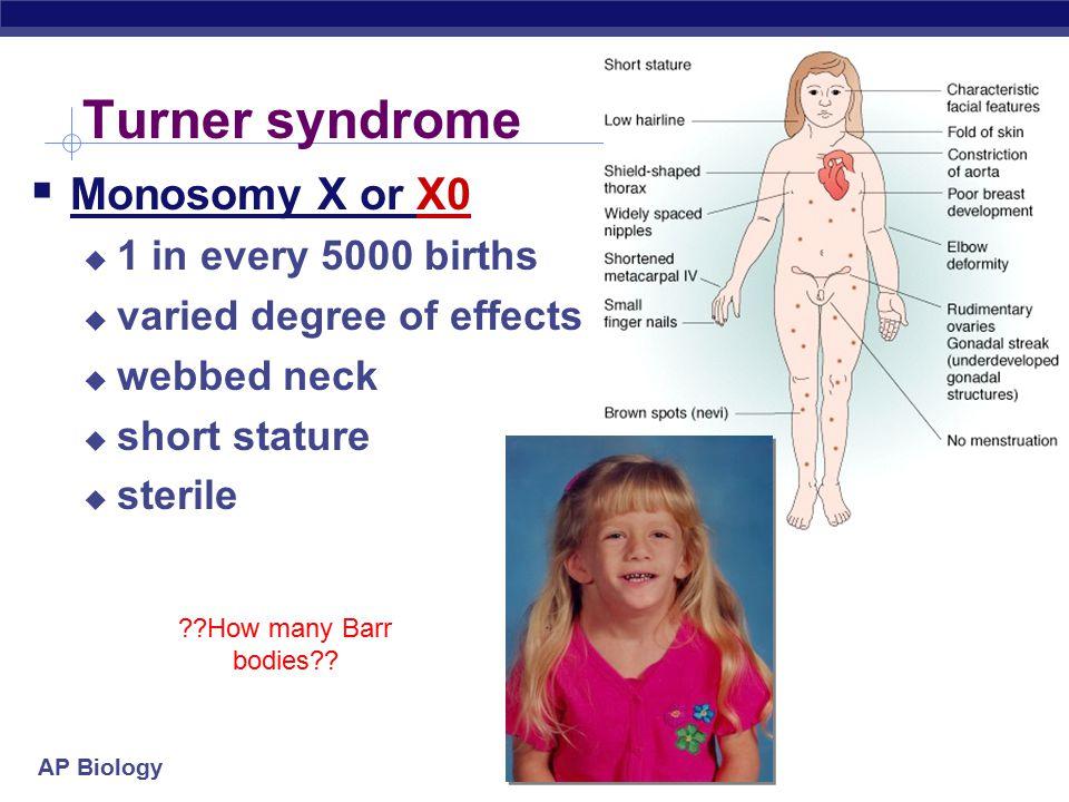 Turner syndrome Monosomy X or X0 1 in every 5000 births