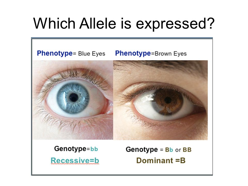 Which Allele is expressed
