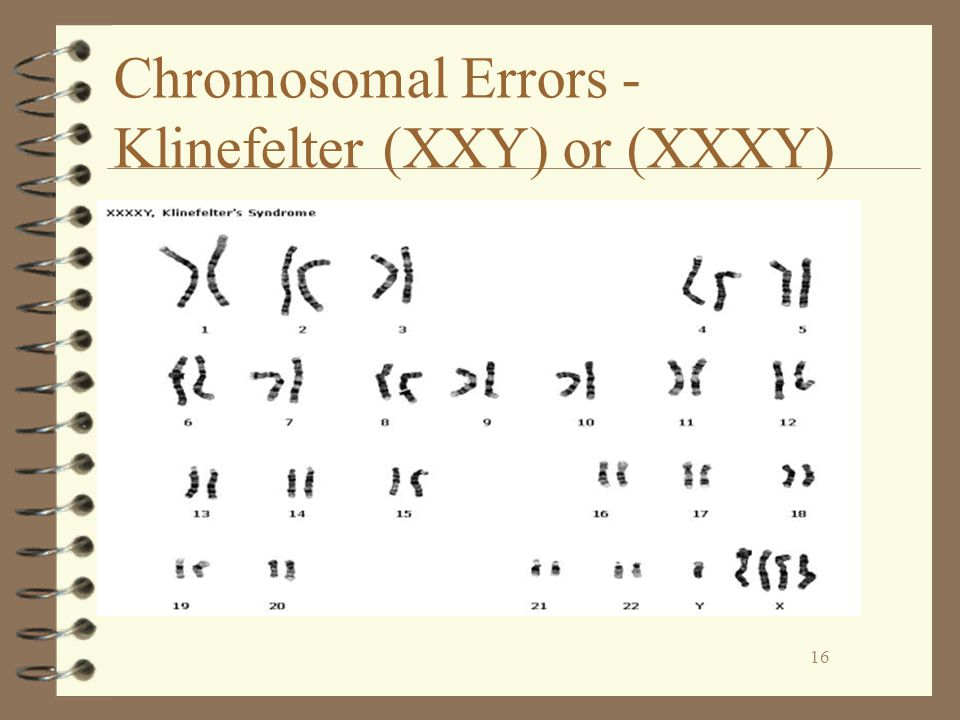 Chromosomal Errors - Klinefelter (XXY) or (XXXY)