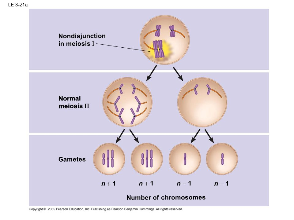 Nondisjunction in meiosis I Normal meiosis II Normal meiosis II