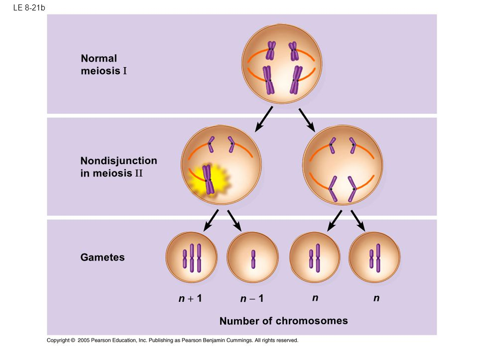 Normal meiosis I Nondisjunction in meiosis I Gametes n + 1 n  1 n n
