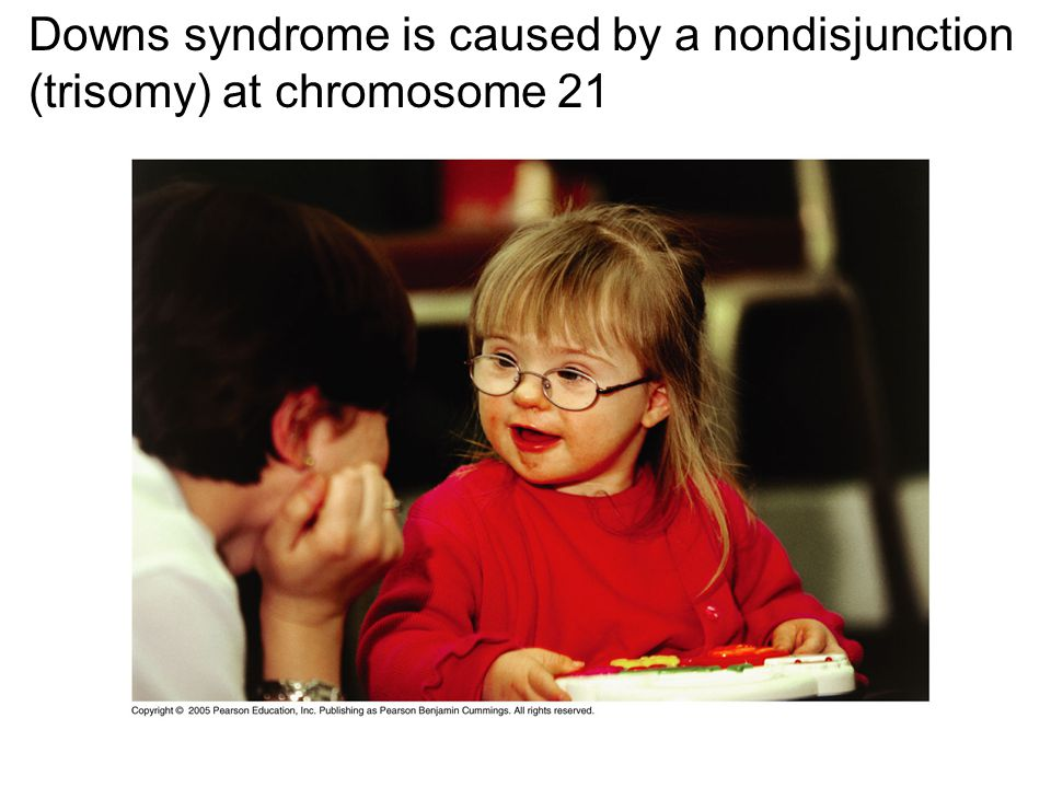 Downs syndrome is caused by a nondisjunction (trisomy) at chromosome 21