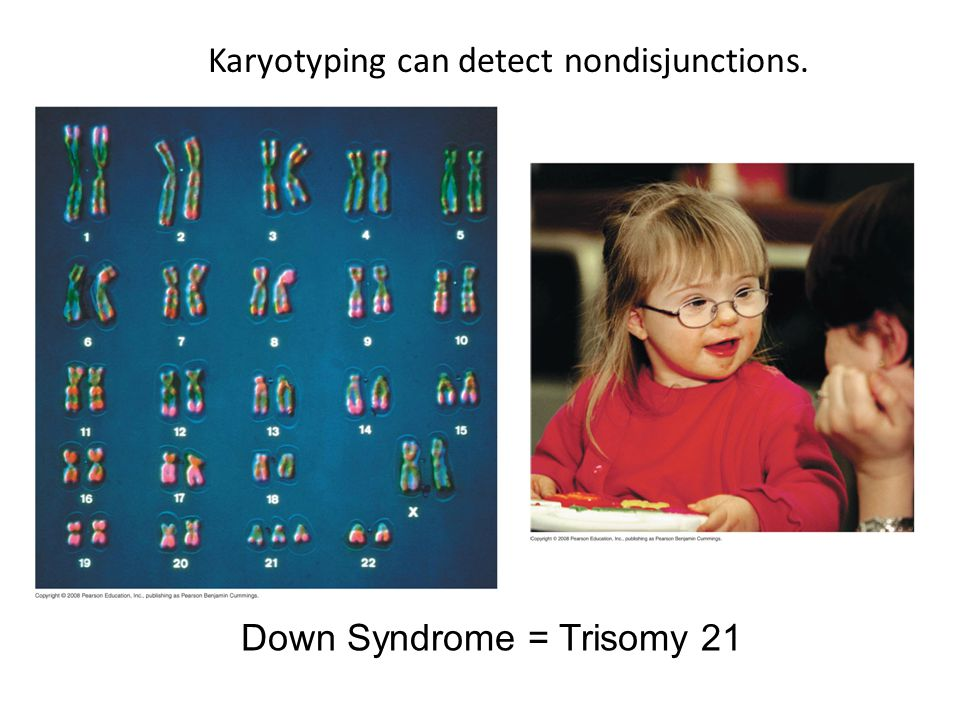 Karyotyping can detect nondisjunctions.