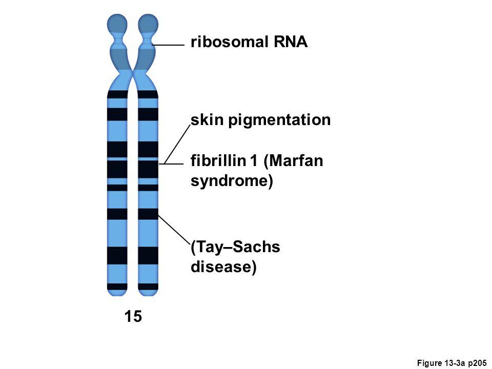 fibrillin 1 (Marfan syndrome)