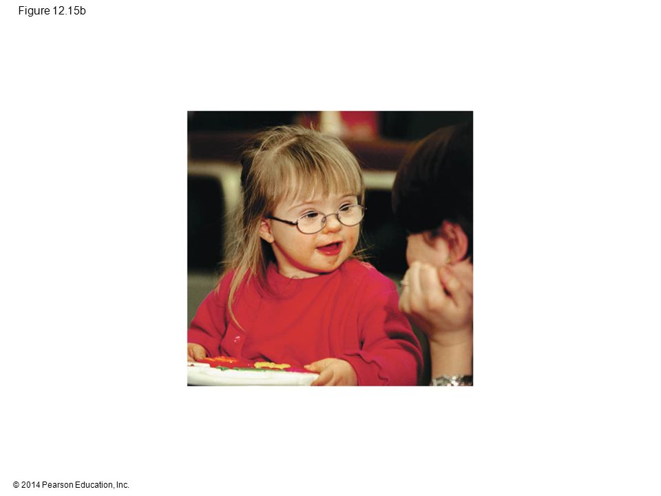 Figure 12.15b Figure 12.15b Down syndrome (part 2: photo) 47