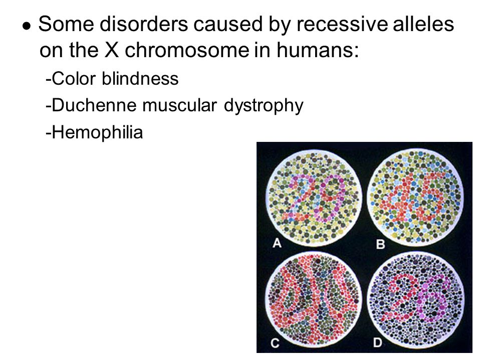 ● Some disorders caused by recessive alleles on the X chromosome in humans: