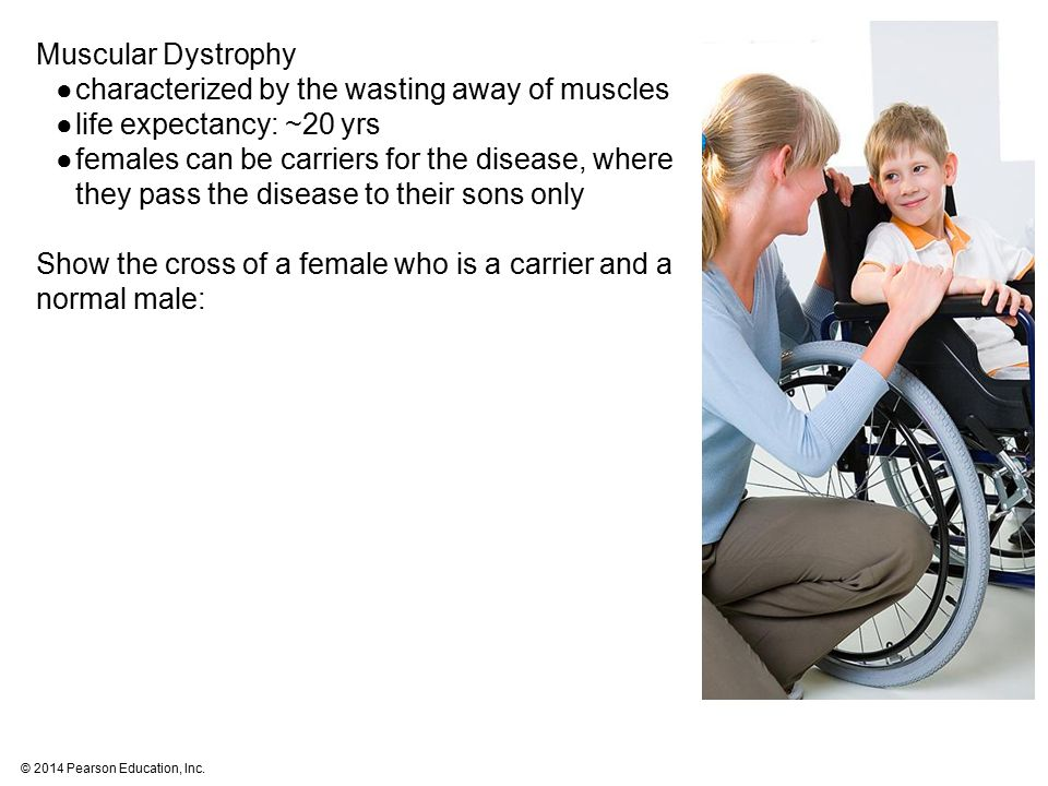 Muscular Dystrophy characterized by the wasting away of muscles. life expectancy: ~20 yrs.
