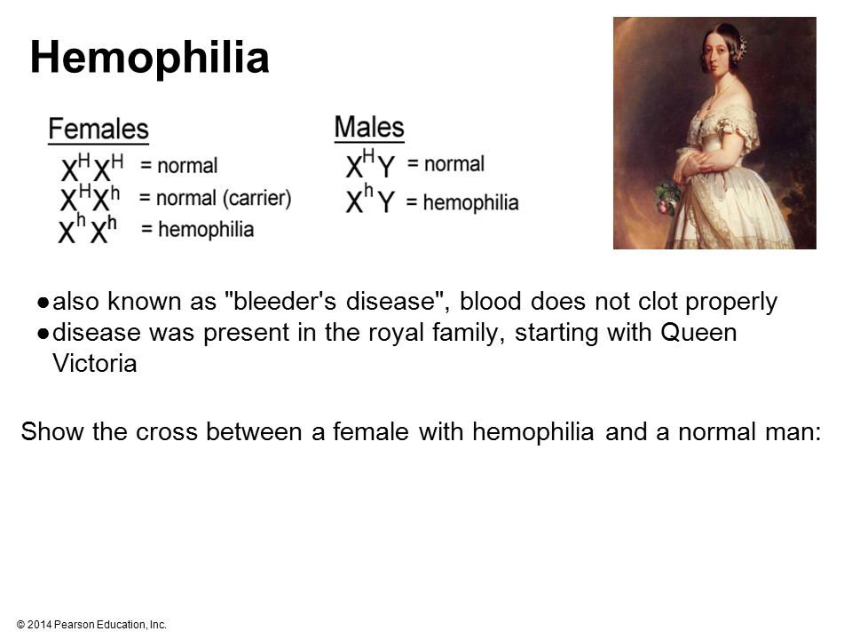 Hemophilia also known as bleeder s disease , blood does not clot properly. disease was present in the royal family, starting with Queen Victoria.