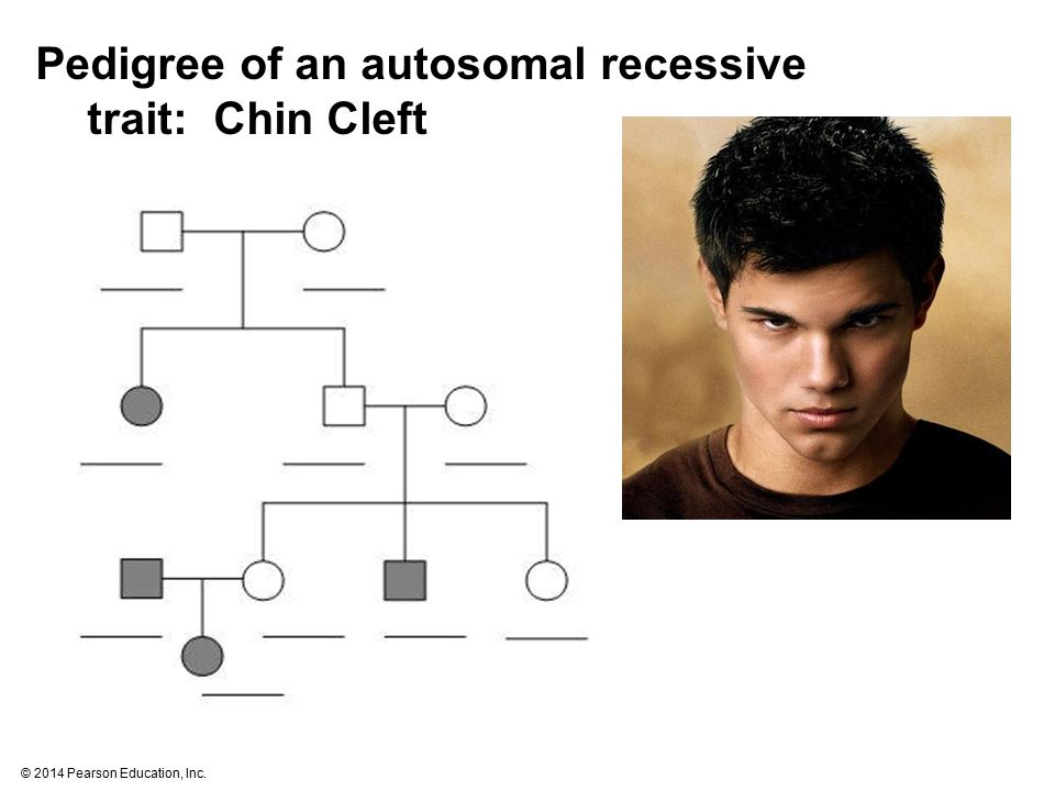 Pedigree of an autosomal recessive trait: Chin Cleft