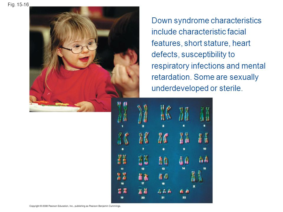 Down syndrome characteristics include characteristic facial