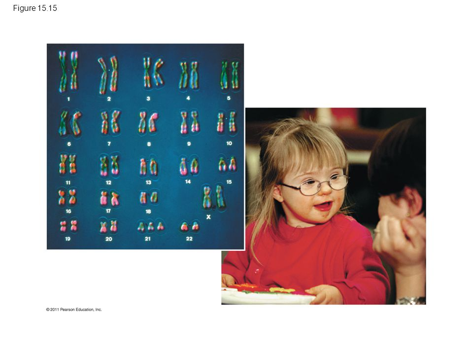 Figure 15.15 Figure 15.15 Down syndrome.