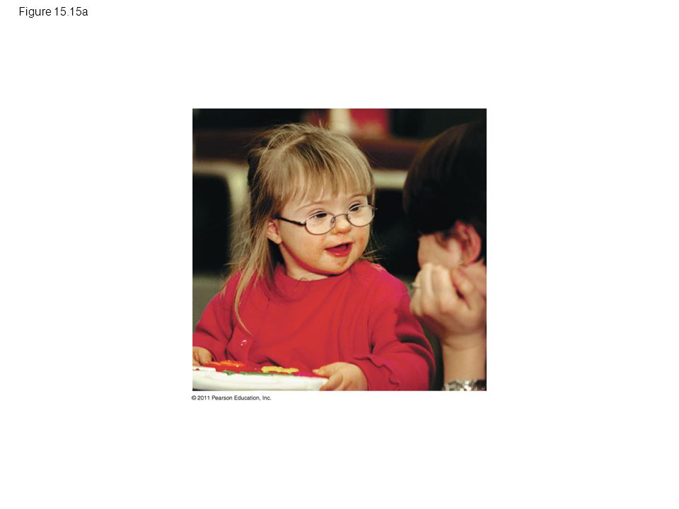 Figure 15.15a Figure 15.15 Down syndrome.