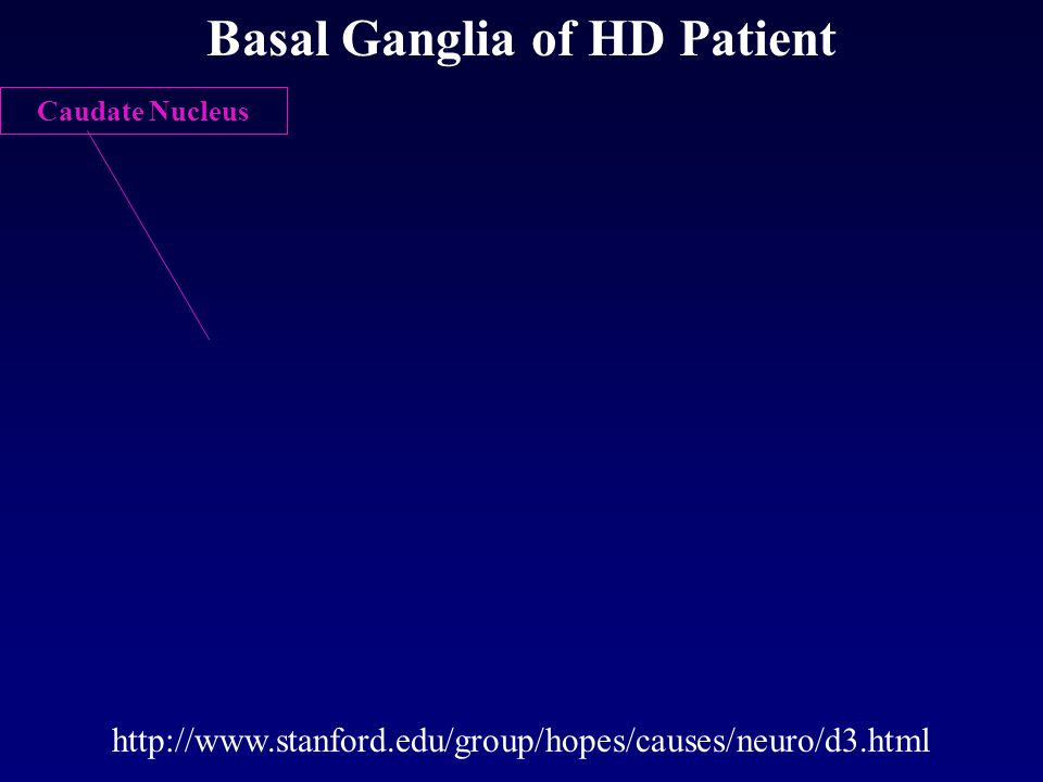 Basal Ganglia of HD Patient