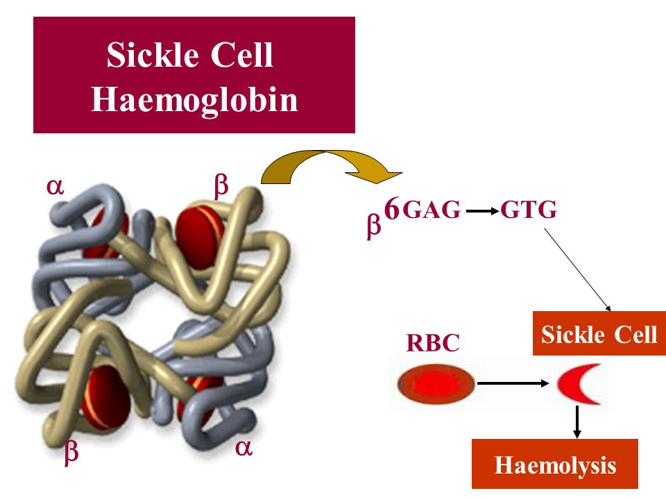 Sickle Cell Haemoglobin