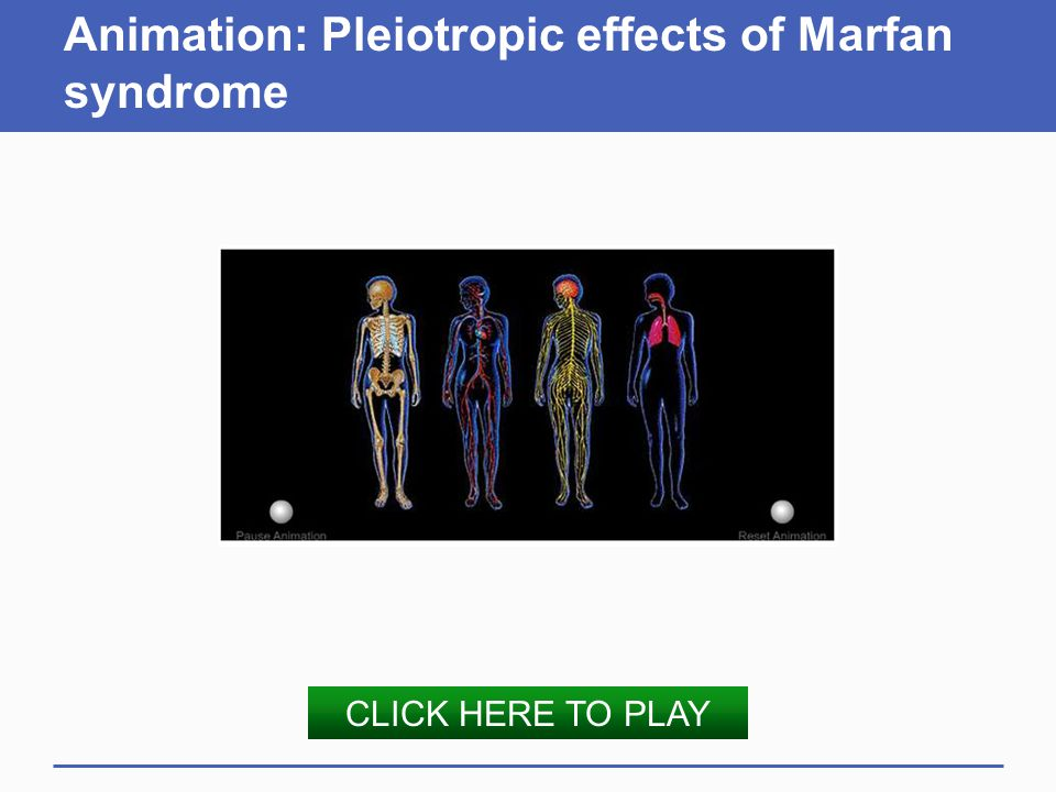 Animation: Pleiotropic effects of Marfan syndrome