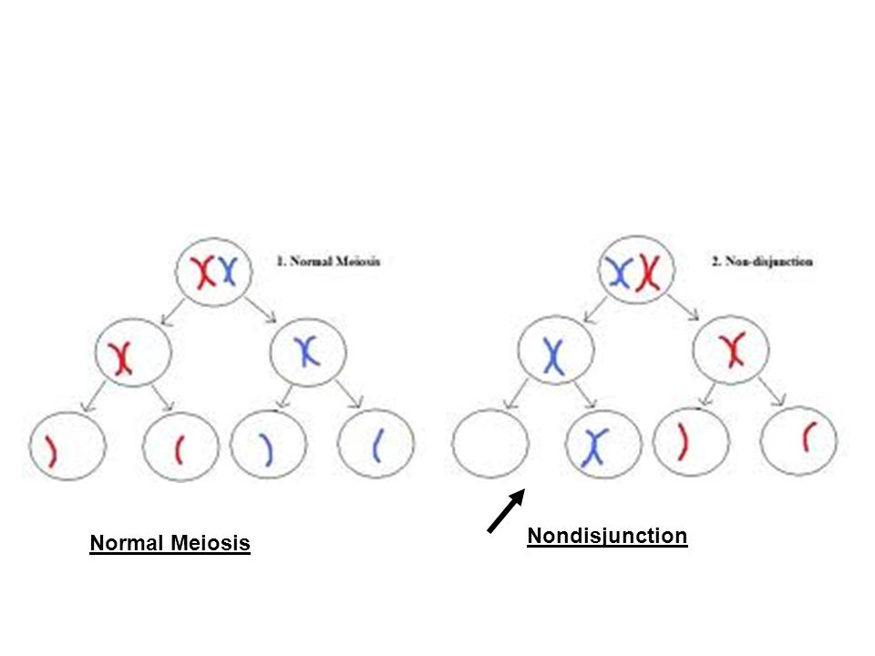 Nondisjunction Normal Meiosis