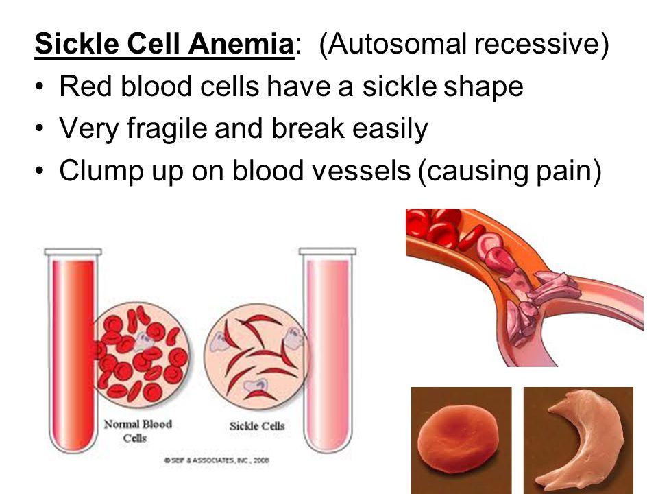 Sickle Cell Anemia: (Autosomal recessive)