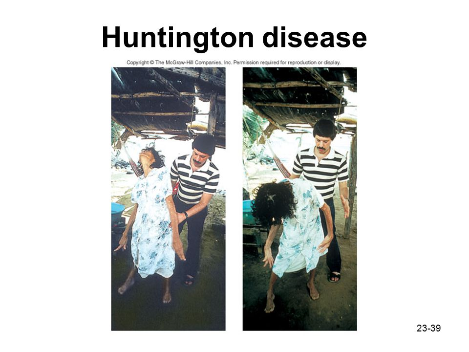 Huntington disease
