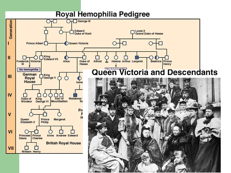 Hemophilia is a sex-linked recessive trait defined by the absence of one or more clotting factors.