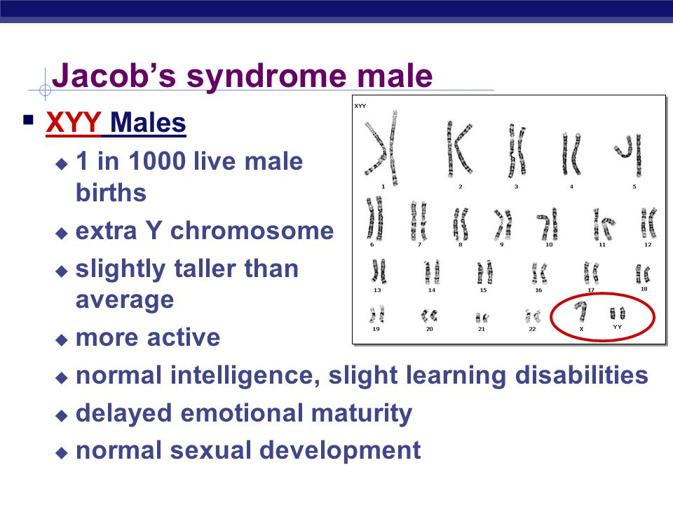 Jacob's syndrome male XYY Males 1 in 1000 live male births