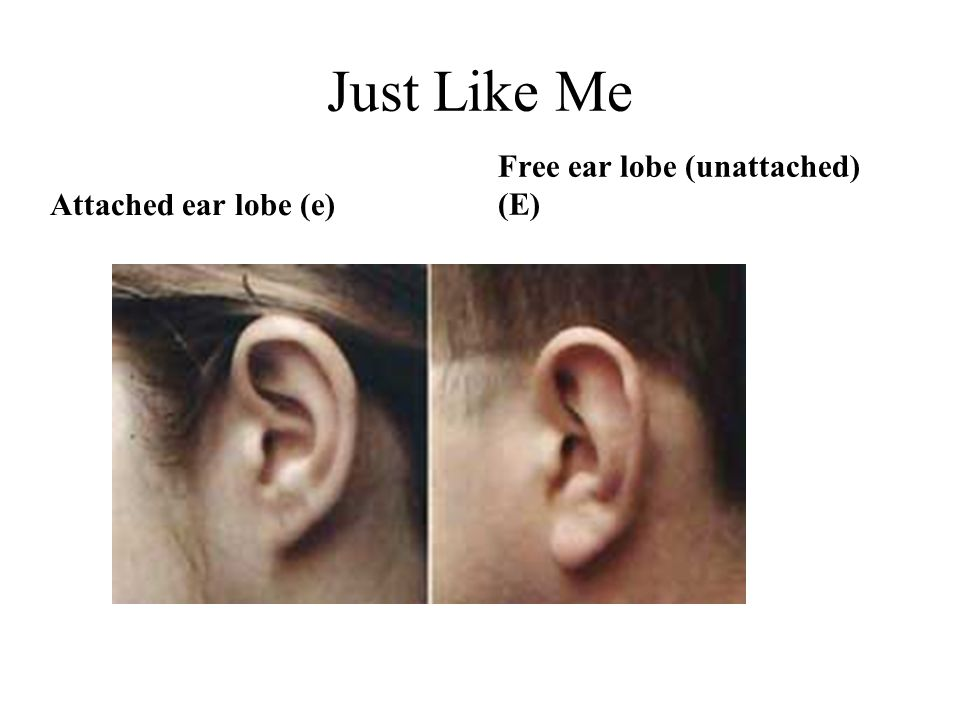 Just Like Me Attached ear lobe (e) Free ear lobe (unattached) (E)