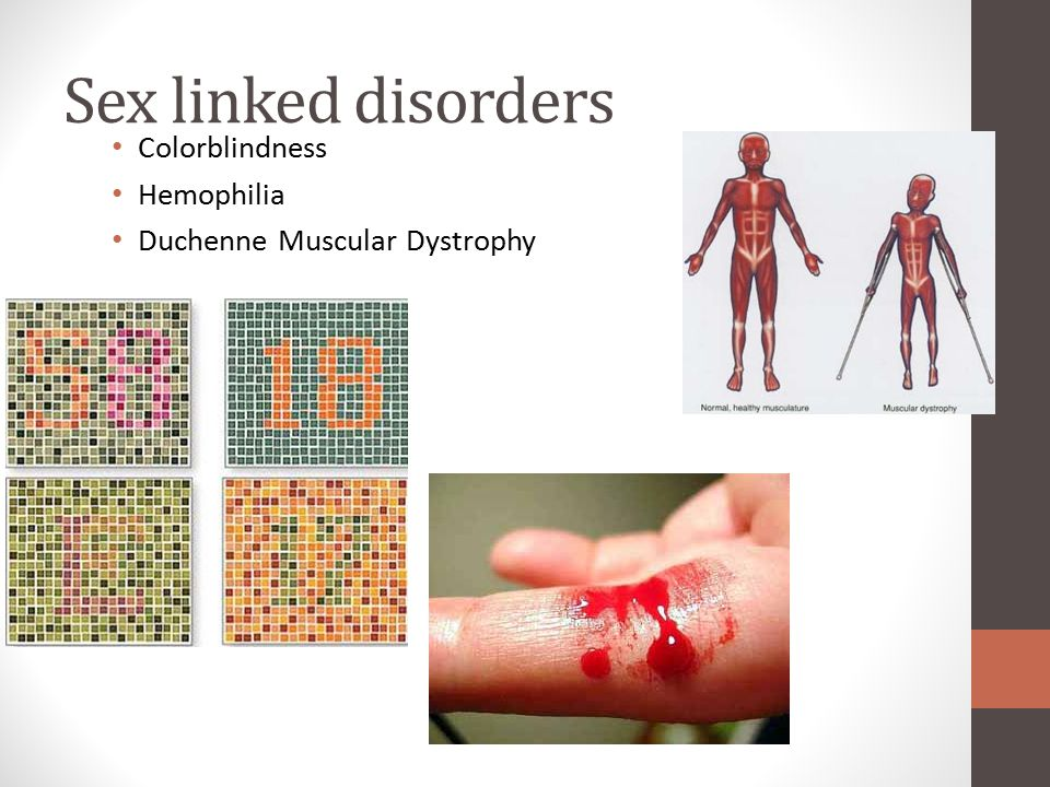 Sex linked disorders Colorblindness Hemophilia