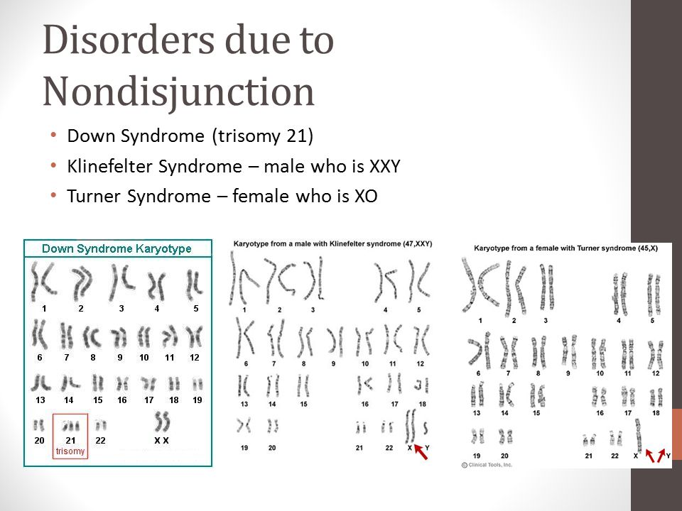 Disorders due to Nondisjunction