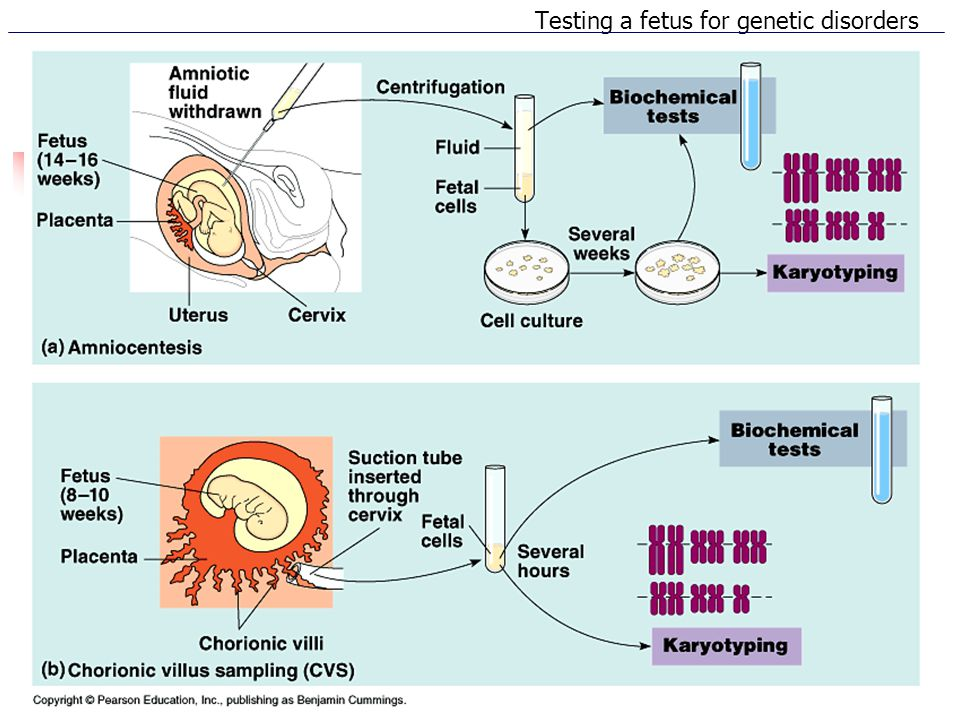 Testing a fetus for genetic disorders