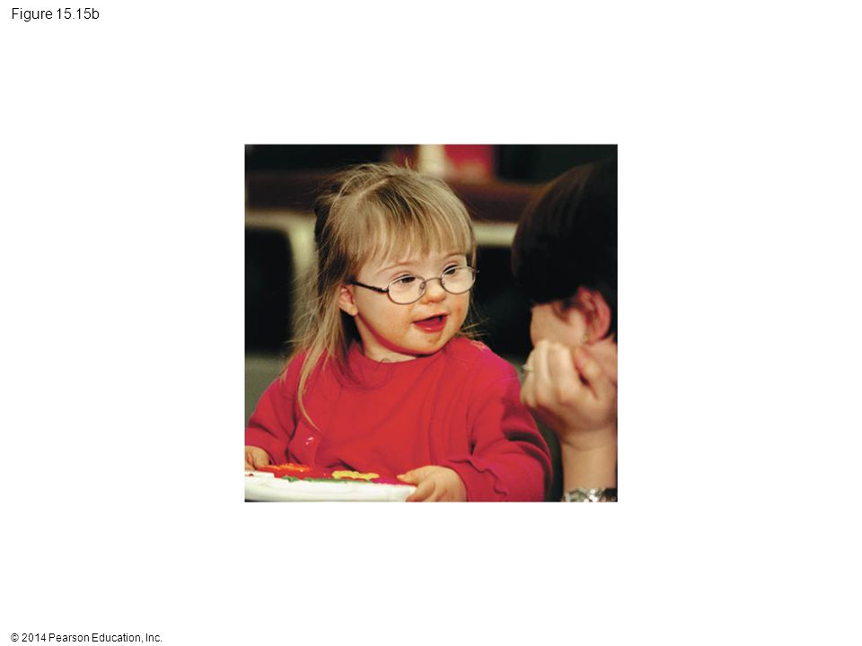 Figure 15.15b Figure 15.15b Down syndrome (part 2: photo)