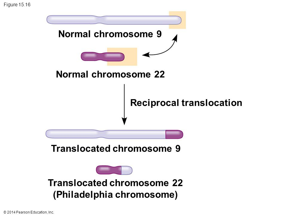 Translocated chromosome 22 (Philadelphia chromosome)