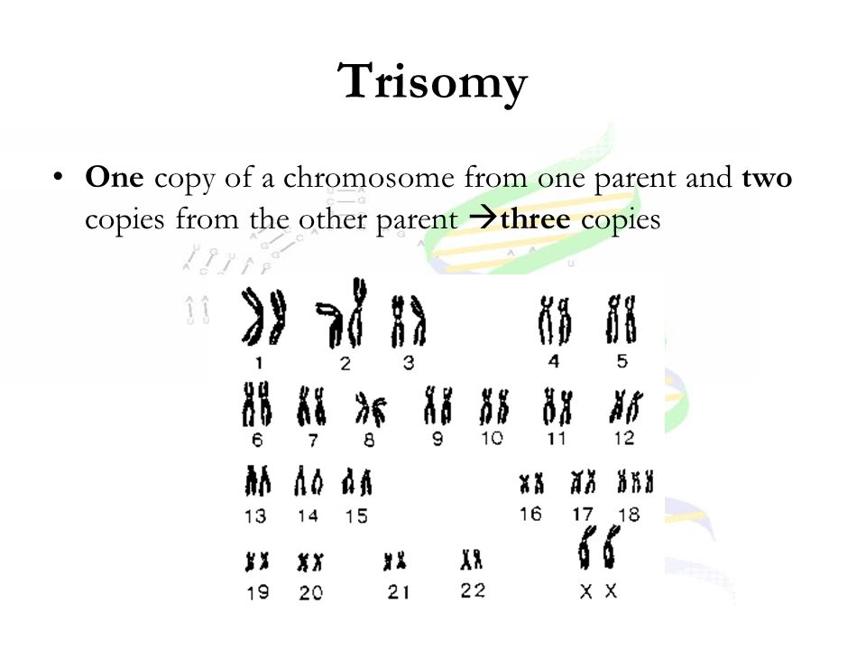 Trisomy One copy of a chromosome from one parent and two copies from the other parent three copies